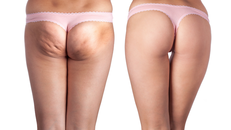how to get rid of cellulite - Christina Carlyle